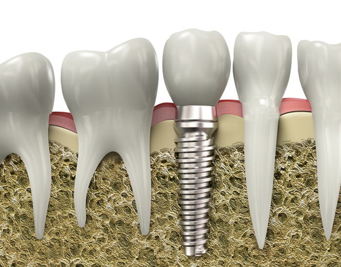 dental-implants in west roxbury